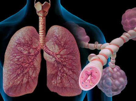 симптомы бронхиальной аллергической астмы