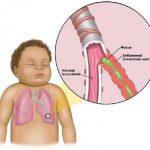 Острый бронхит у детей: симптомы, лечение и уход за ребенком
