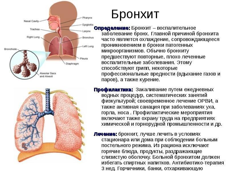 лечение и профилактика бронхита (схема)