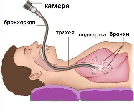 Диагностика мокроты без кашля